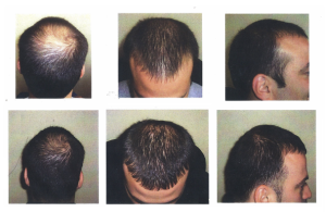 Regrow Hair and Stop Hair Loss