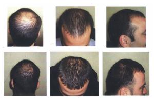Regrow Hair and Stop Hair Loss