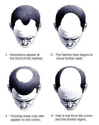 hair loss treatments home reme s for hair growth
