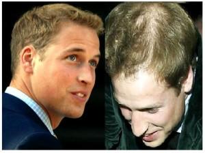 hair loss guidance